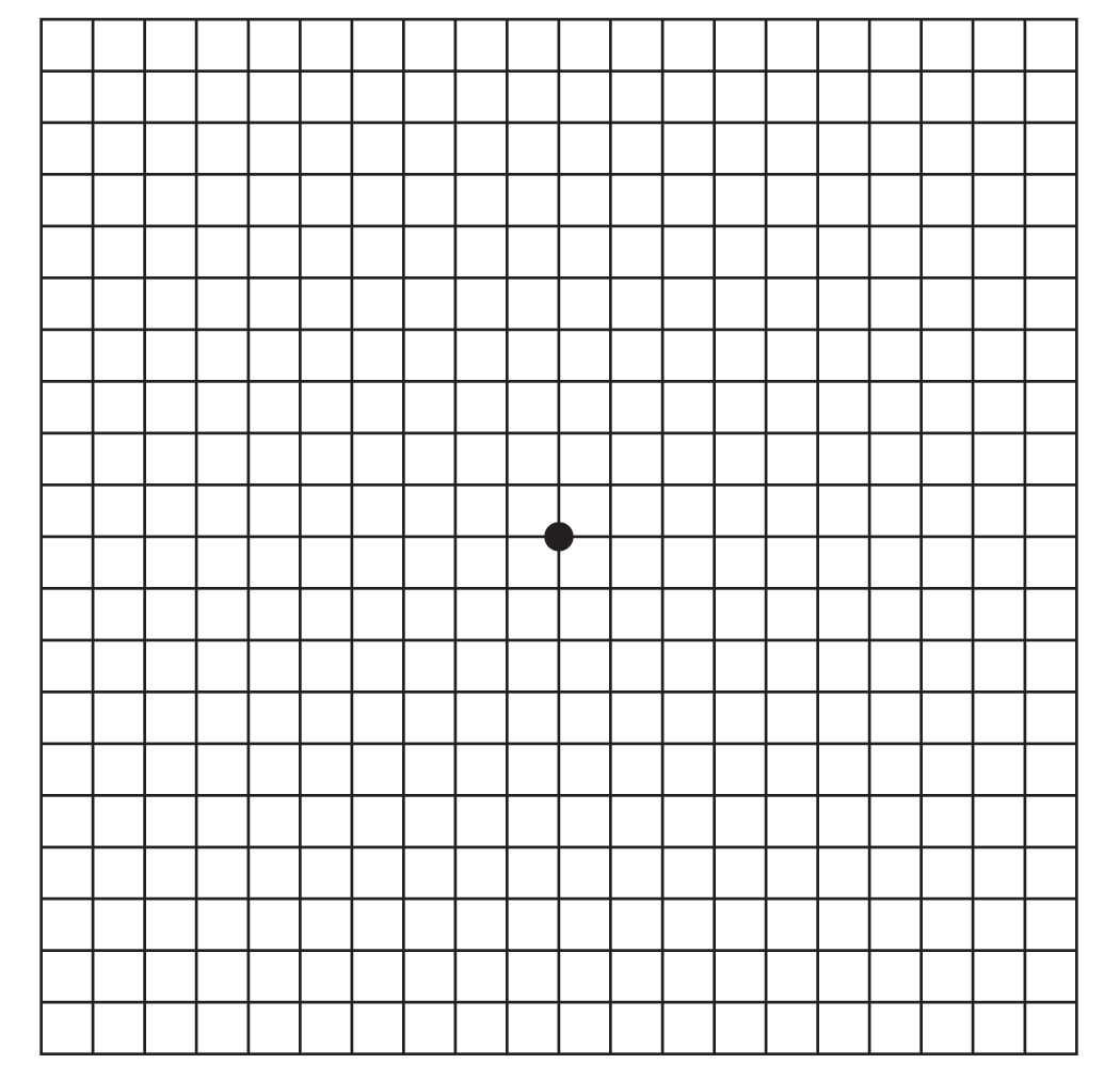 The Amsler grid is a tool that eye doctors use to detect vision problems resulting from damage to the macula or the optic nerve