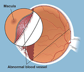 The macula is a small area of the retina located directly at the back of the eye. While the entire retina receives light rays, the macula is responsible for central vision, including fine detail and colors.